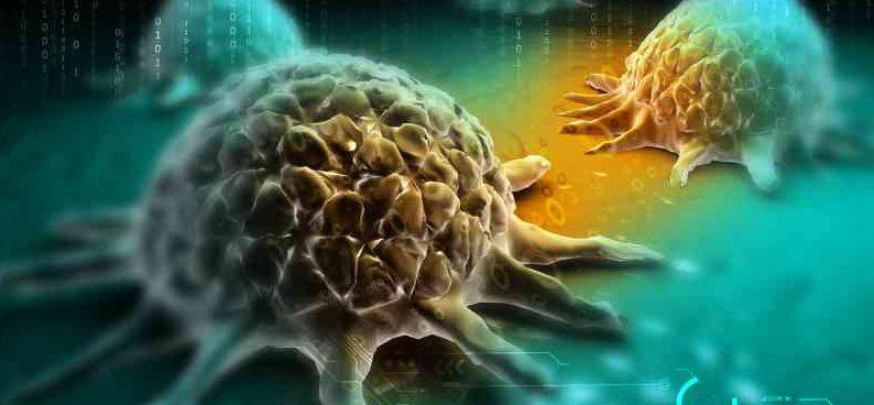 癌細胞早已在動手術前已轉移