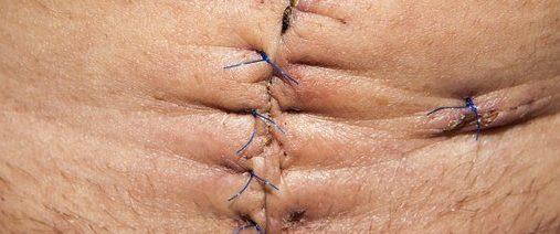 癌症動手術對身體造成嚴重的傷害