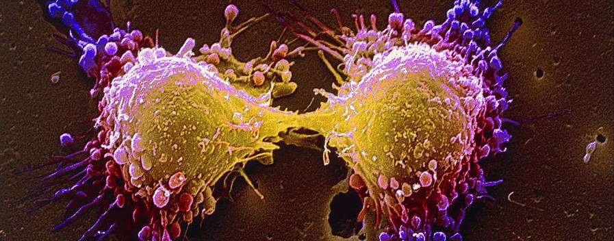 肝癌的轉移