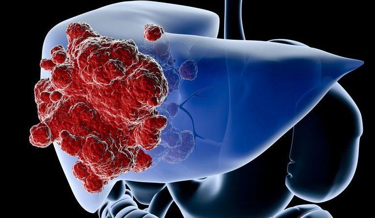 透過手術、化療或放療醫治癌症,癌細胞反而加速擴散