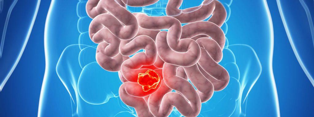 普天登指令細胞生産的抗氧化酵素能對抗結腸癌