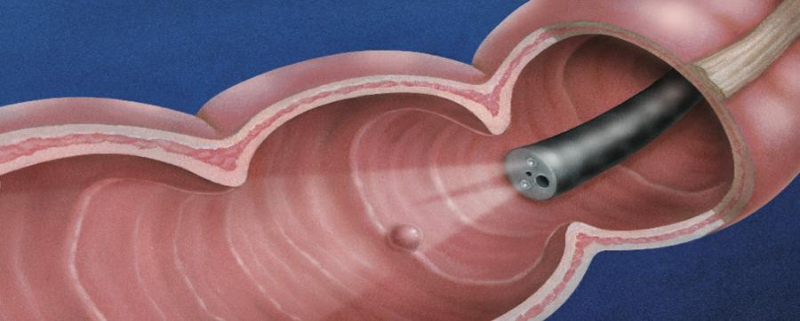 大腸鏡檢查