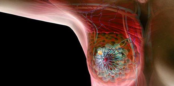 進行前哨淋巴(檢查)可以驗到很細微的癌細胞擴散
