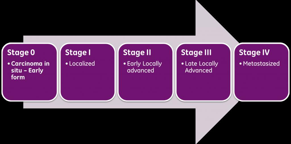 攝護腺/前列腺癌的分期系統