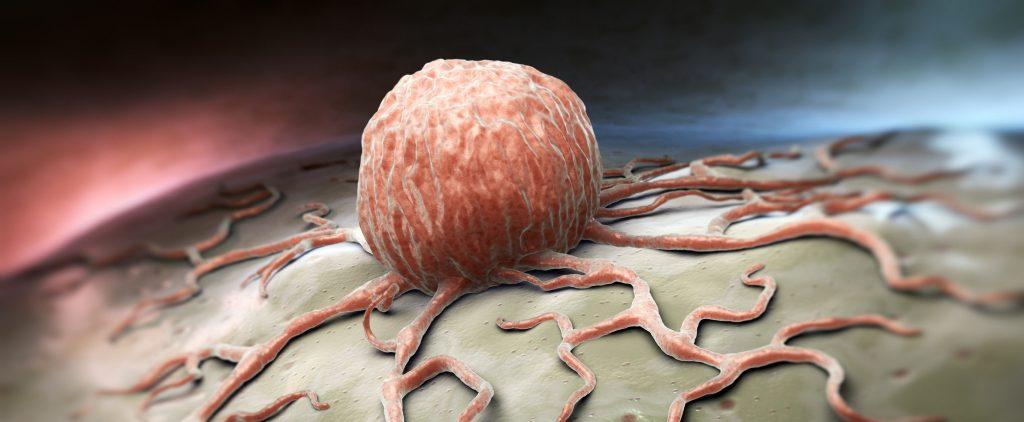 癌細胞早在癌腫瘤被發現前已擴散