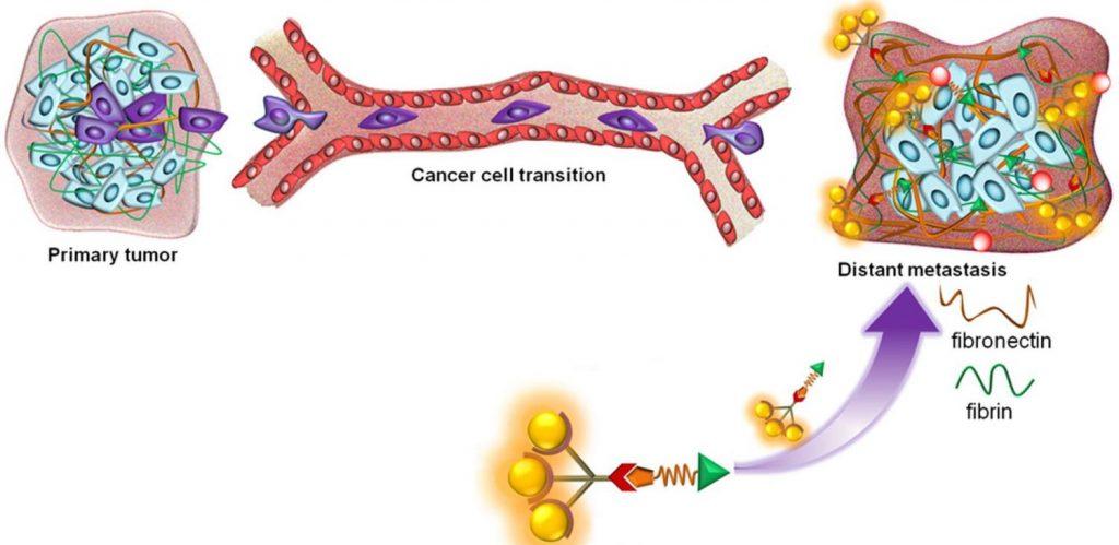 大腸癌的復發和轉移
