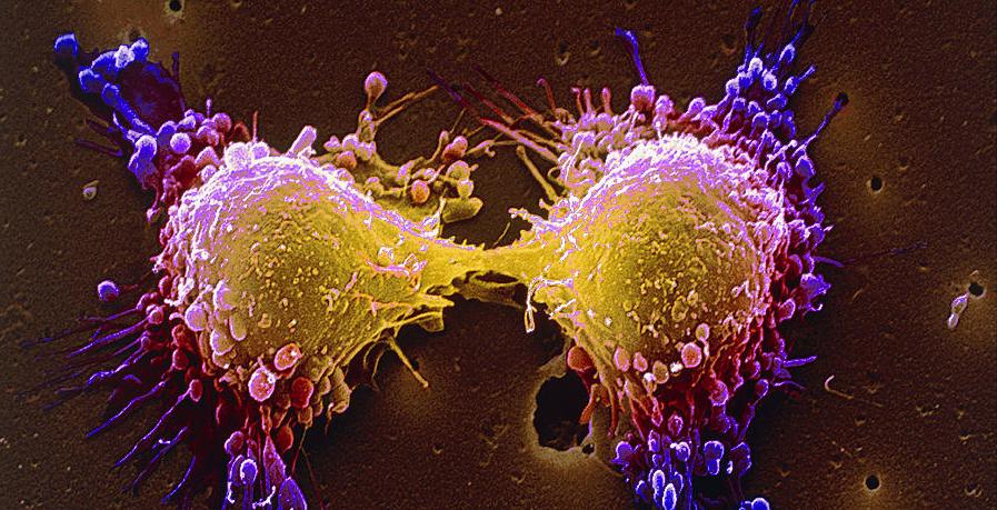 「癌」細胞的成長