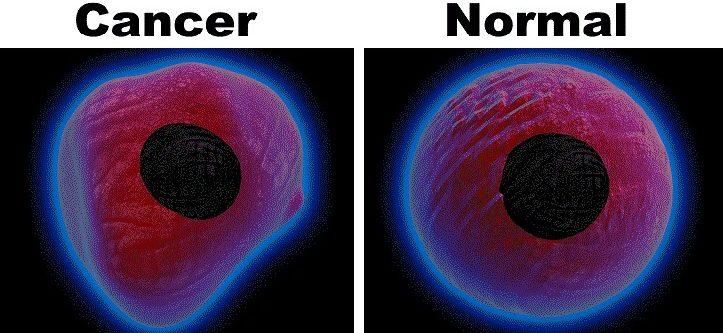癌細胞與正常細胞的異同