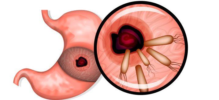 高鹽份飲食的致癌原因:幽門螺旋桿菌會更加破壞胃黏膜