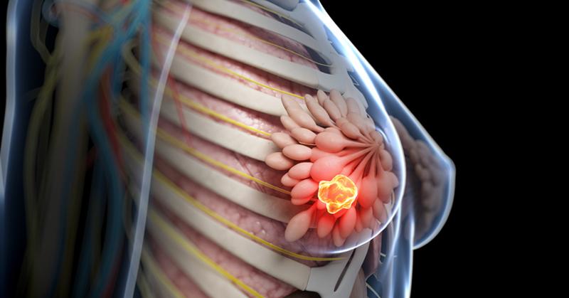荷爾蒙治療處理乳癌復發