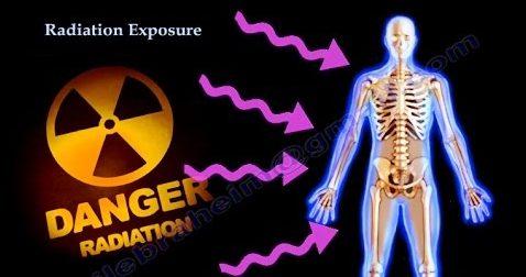 放射線治療對人體的傷害