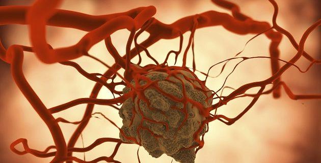 胃癌細胞若是入侵血管,隨著血液到處流竄,最容易讓它落地生根、形成病灶的地方首推肝臟