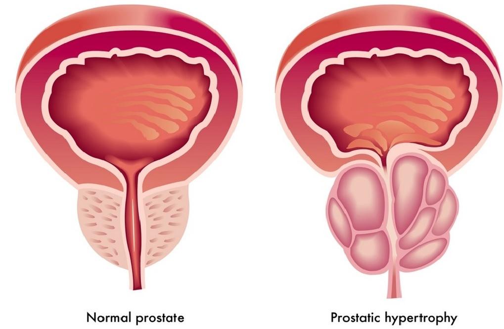 攝護腺/前列腺增生不會變攝護腺/前列腺癌